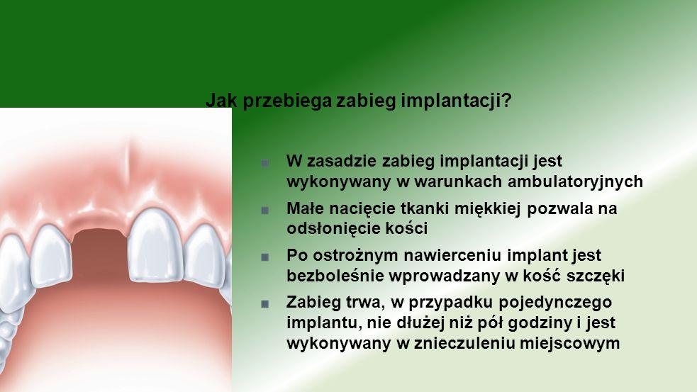 Jak przebiega zabieg implantacji