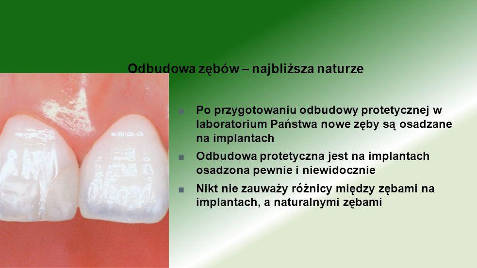 Odbudowa zębów – najbliższa naturze