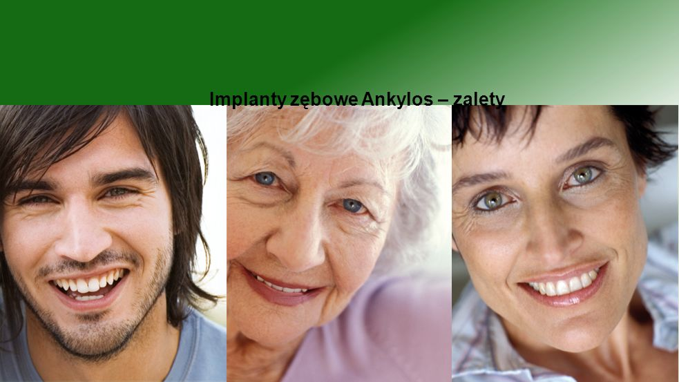 Implanty zębowe Ankylos – zalety