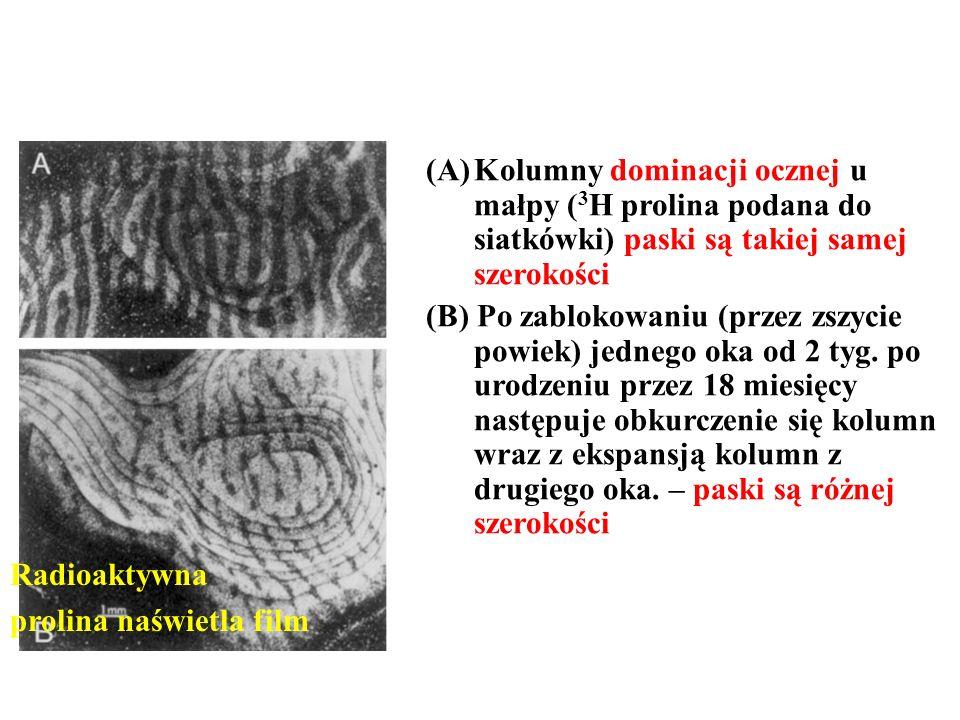 Kolumny dominacji ocznej u małpy (3H prolina podana do siatkówki) paski są takiej samej szerokości