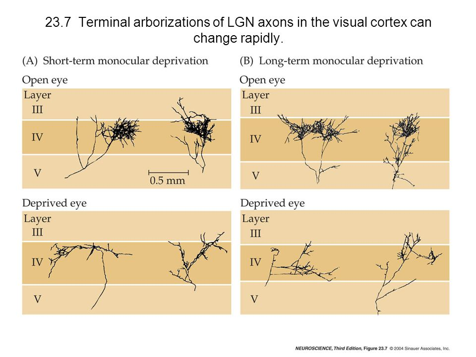 23.7 Terminal arborizations of LGN axons in the visual cortex can change rapidly.