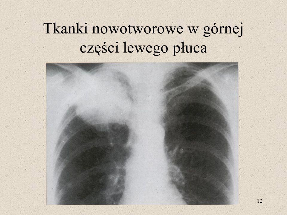 Tkanki nowotworowe w górnej części lewego płuca