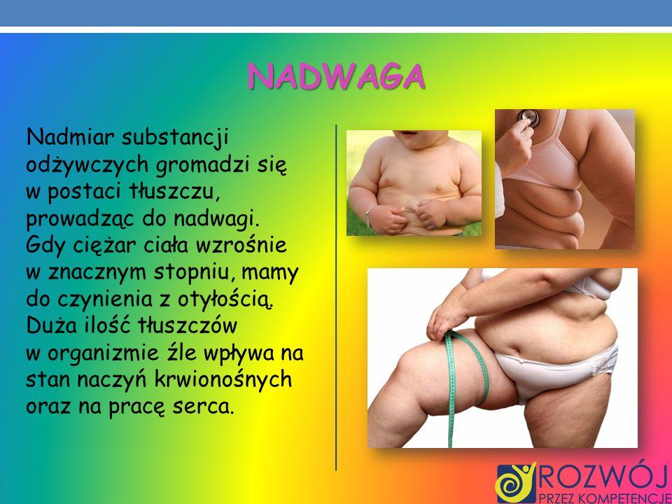 Nadwaga