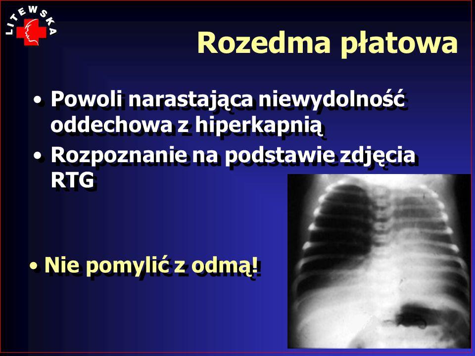 Rozedma płatowaPowoli narastająca niewydolność oddechowa z hiperkapnią. Rozpoznanie na podstawie zdjęcia RTG.