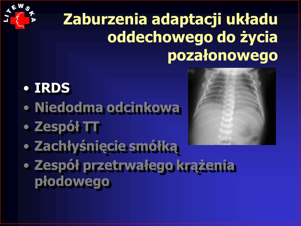 Zaburzenia adaptacji układu oddechowego do życia pozałonowego