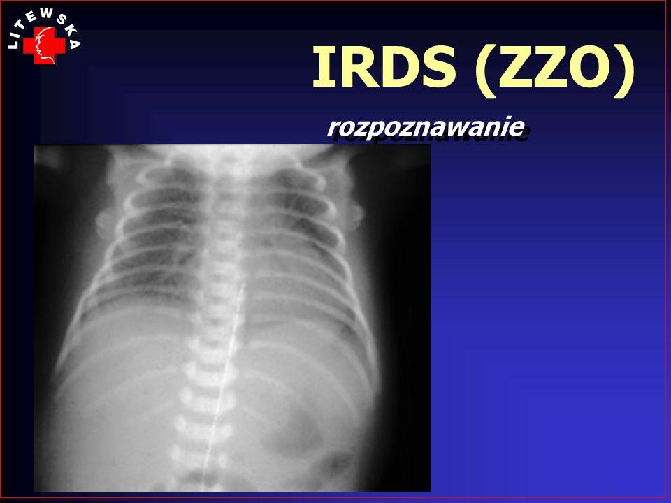 IRDS (ZZO) rozpoznawanie