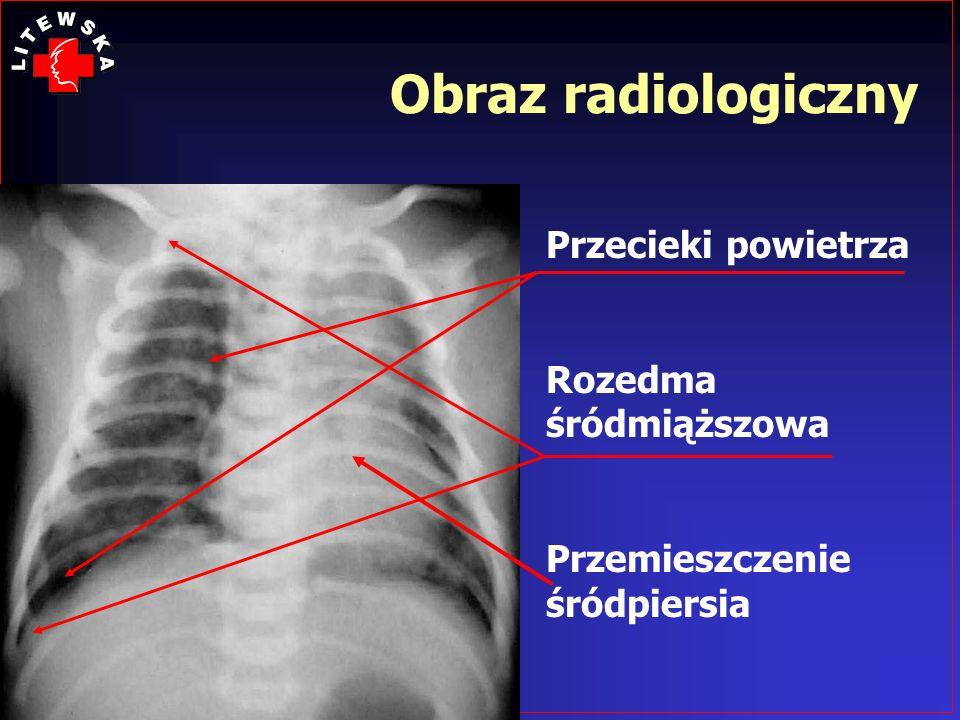 Obraz radiologiczny Przecieki powietrza Rozedma śródmiąższowa