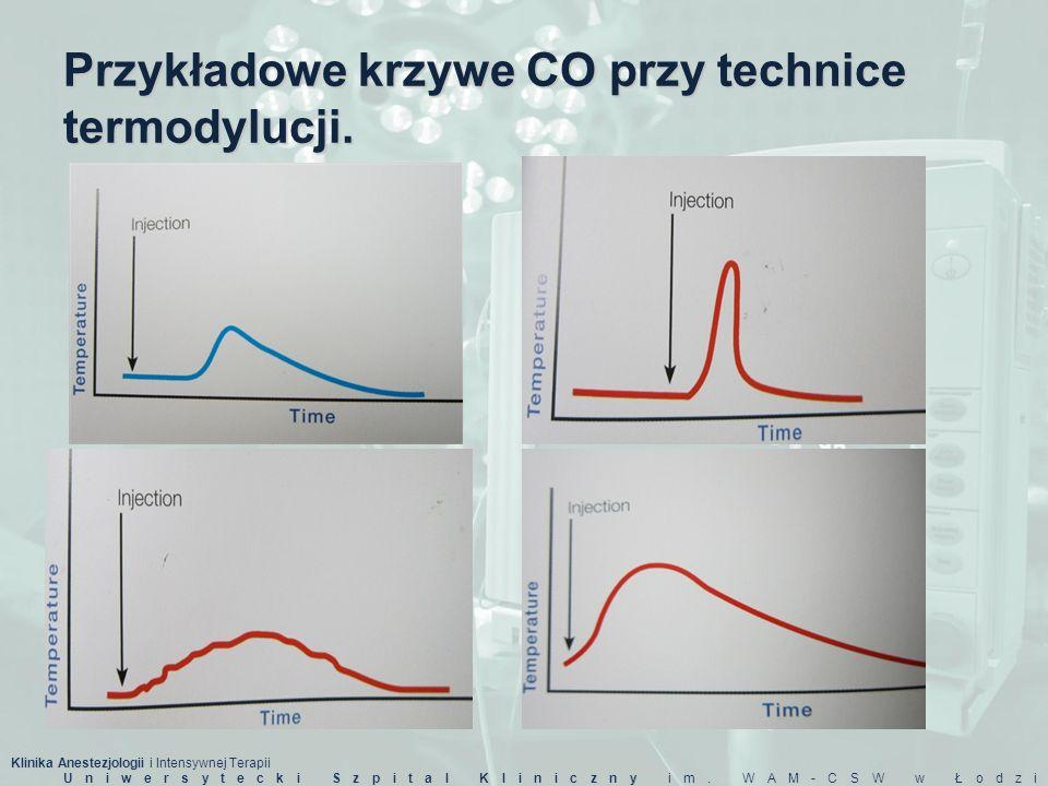 Przykładowe krzywe CO przy technice termodylucji.