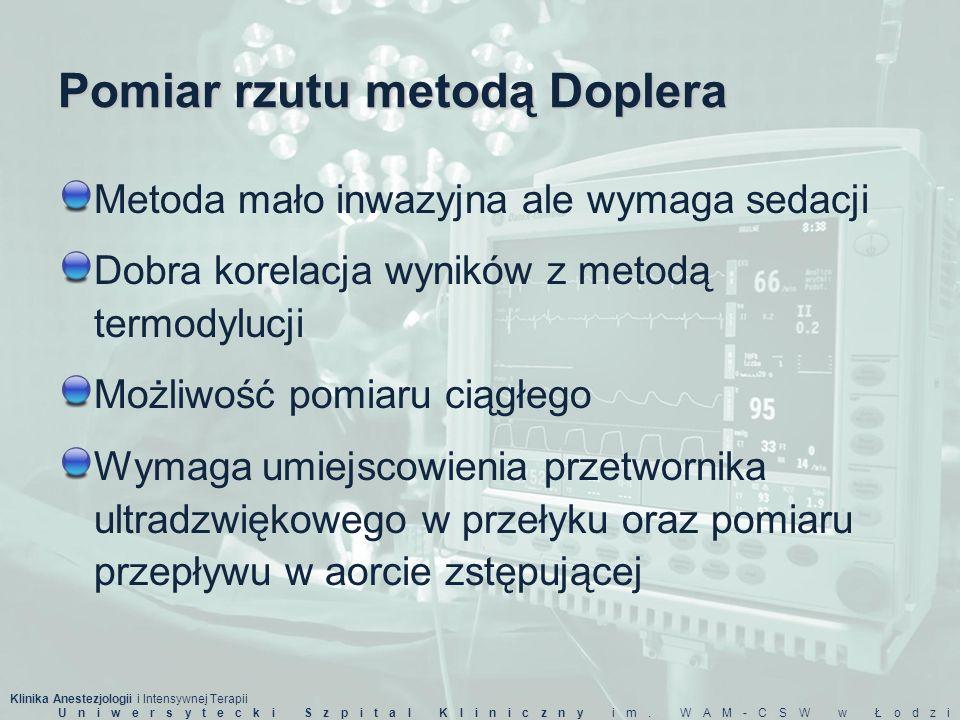 Pomiar rzutu metodą Doplera