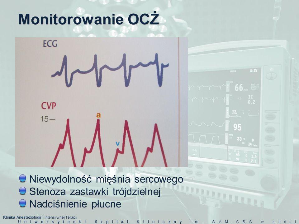 Monitorowanie OCŻ Niewydolność mięśnia sercowego
