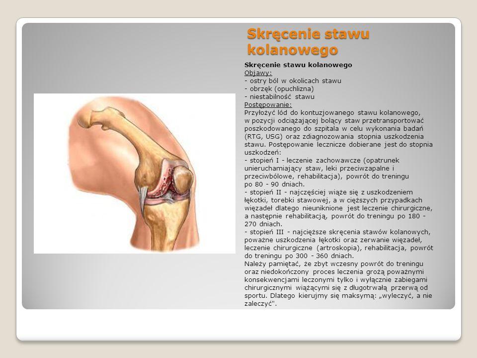 Skręcenie stawu kolanowego