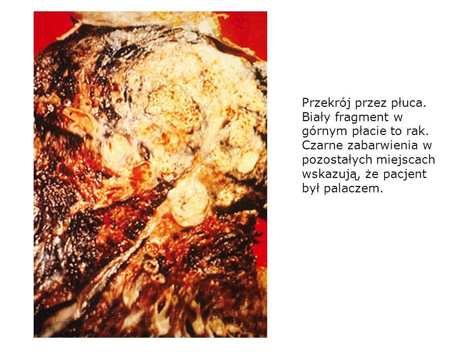 Przekrój przez płuca. Biały fragment w górnym płacie to rak