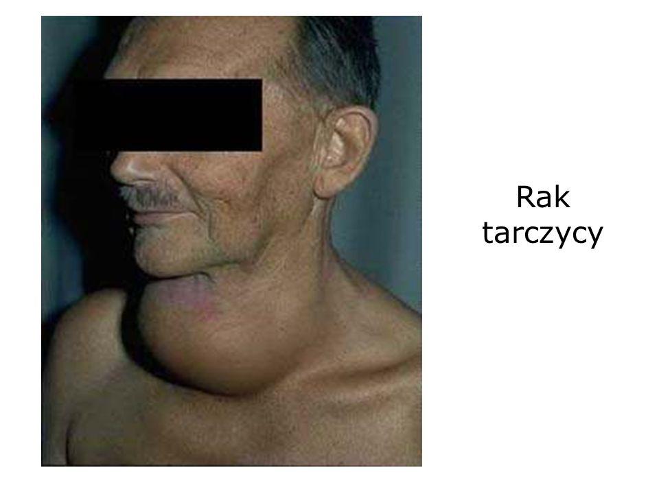 Rak tarczycy