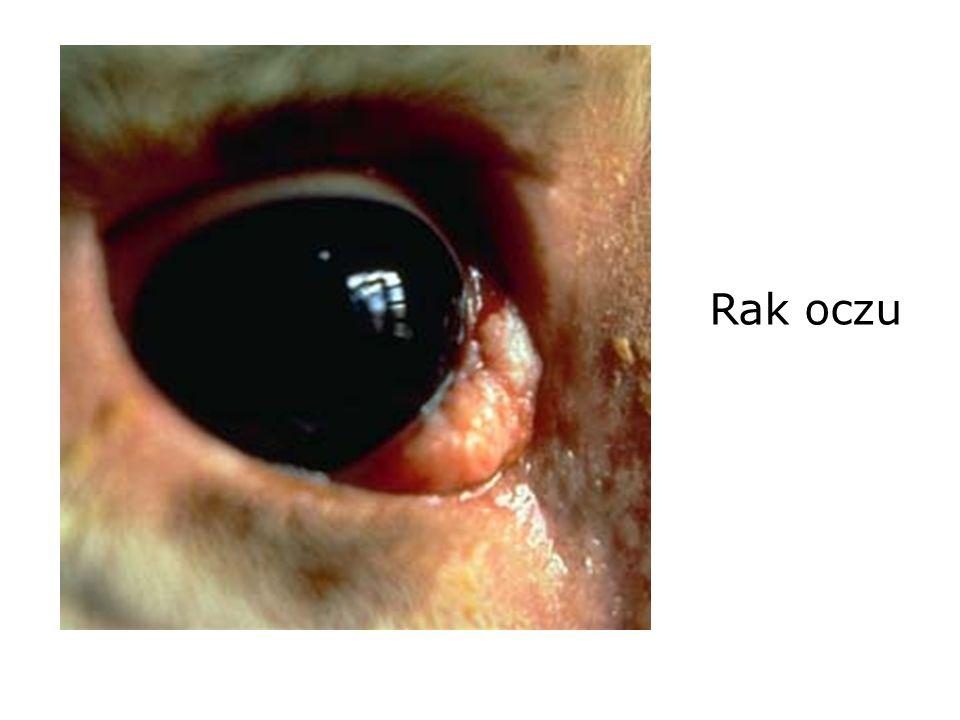 Rak oczu