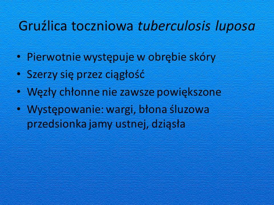 Gruźlica toczniowa tuberculosis luposa