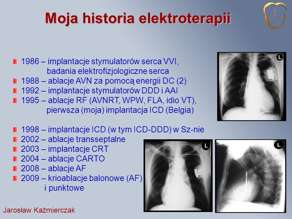 Moja historia elektroterapii