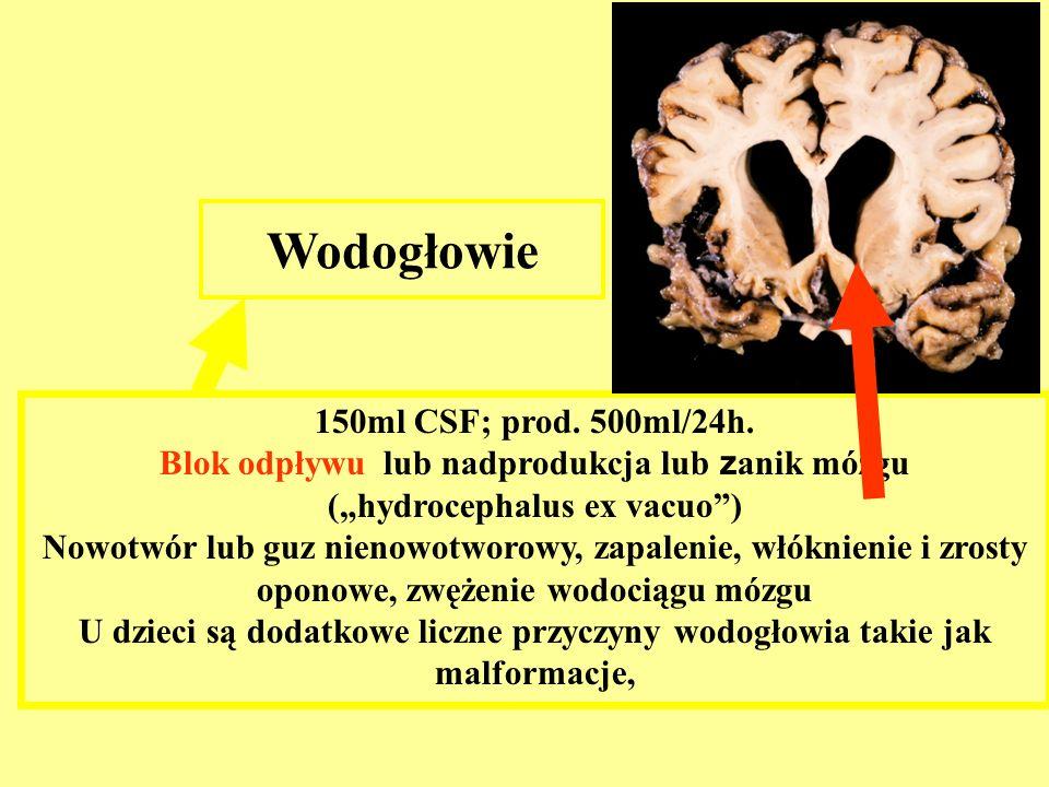 Wodogłowie 150ml CSF; prod. 500ml/24h.