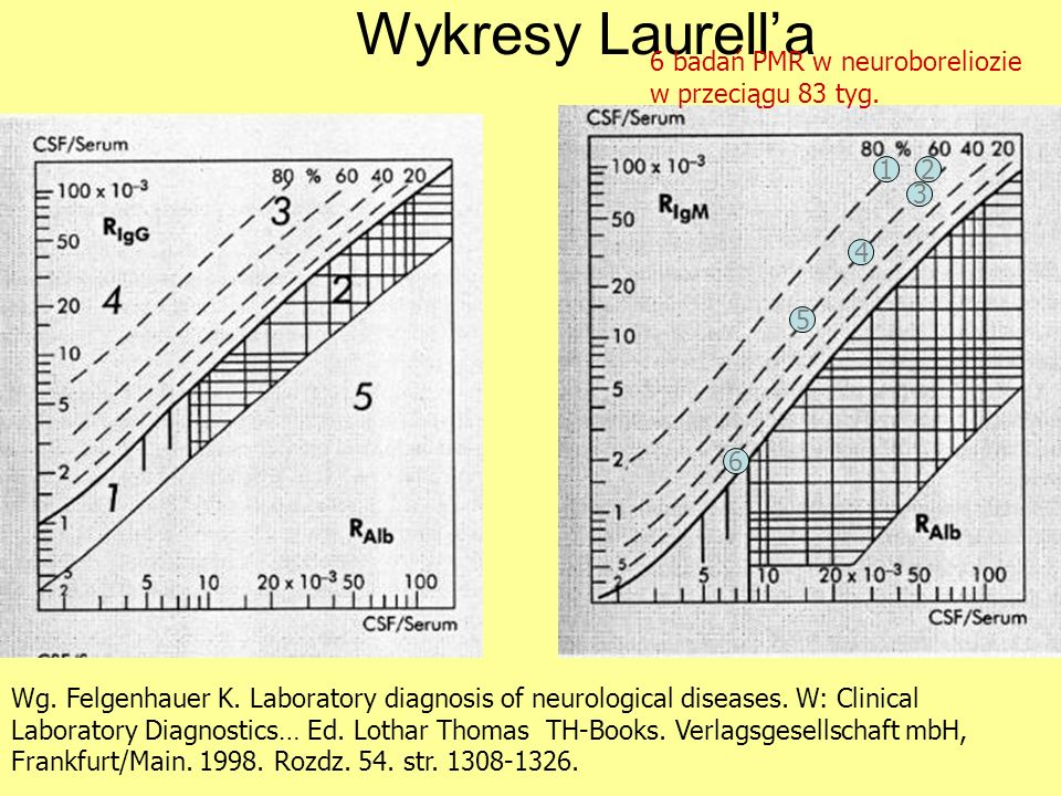 Wykresy Laurell'a 6 badań PMR w neuroboreliozie w przeciągu 83 tyg. 1