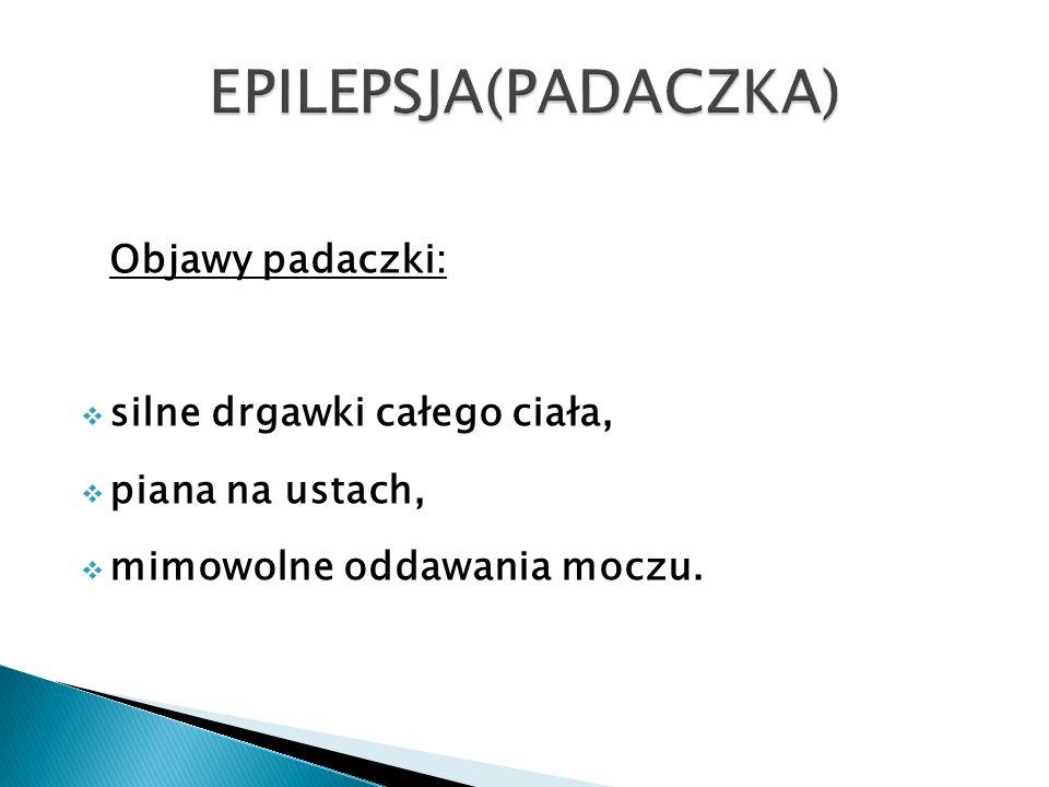 EPILEPSJA(PADACZKA) Objawy padaczki: silne drgawki całego ciała,