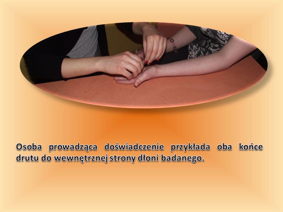 Osoba prowadząca doświadczenie przykłada oba końce drutu do wewnętrznej strony dłoni badanego.