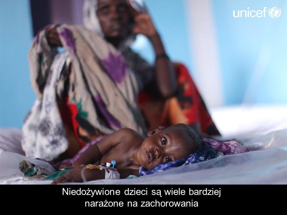 Niedożywione dzieci są wiele bardziej narażone na zachorowania
