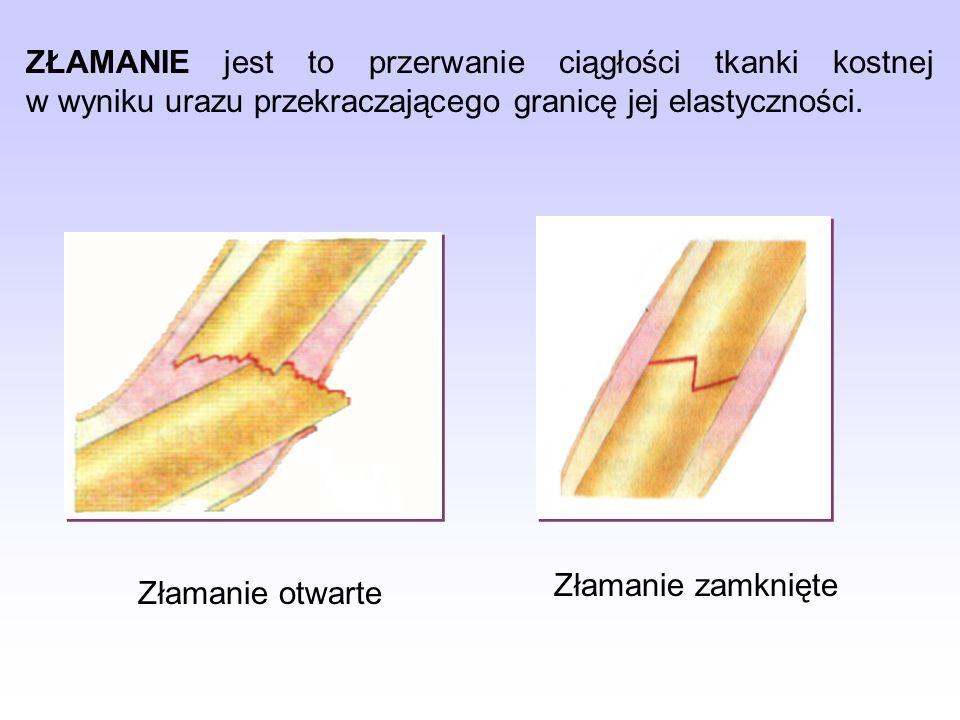 ZŁAMANIE jest to przerwanie ciągłości tkanki kostnej w wyniku urazu przekraczającego granicę jej elastyczności.