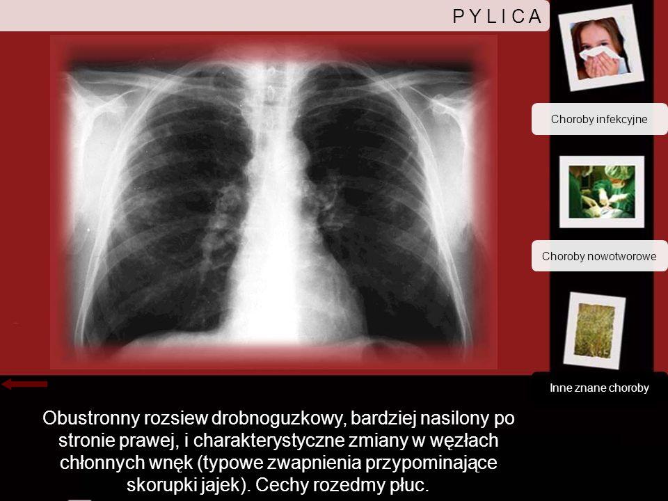 P Y L I C A Choroby infekcyjne. Choroby nowotworowe. Inne znane choroby.
