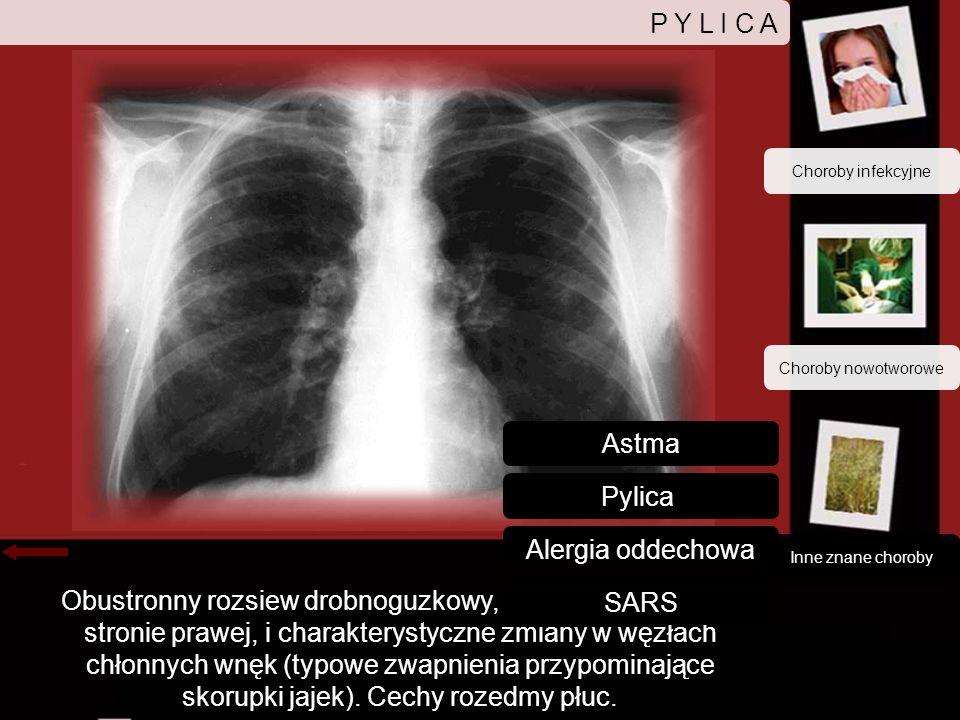 P Y L I C A Astma Pylica Alergia oddechowa