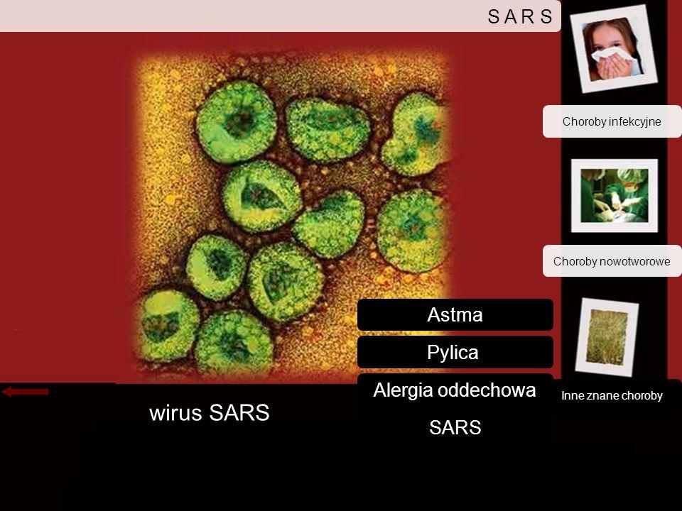 wirus SARS S A R S Astma Pylica Alergia oddechowa SARS