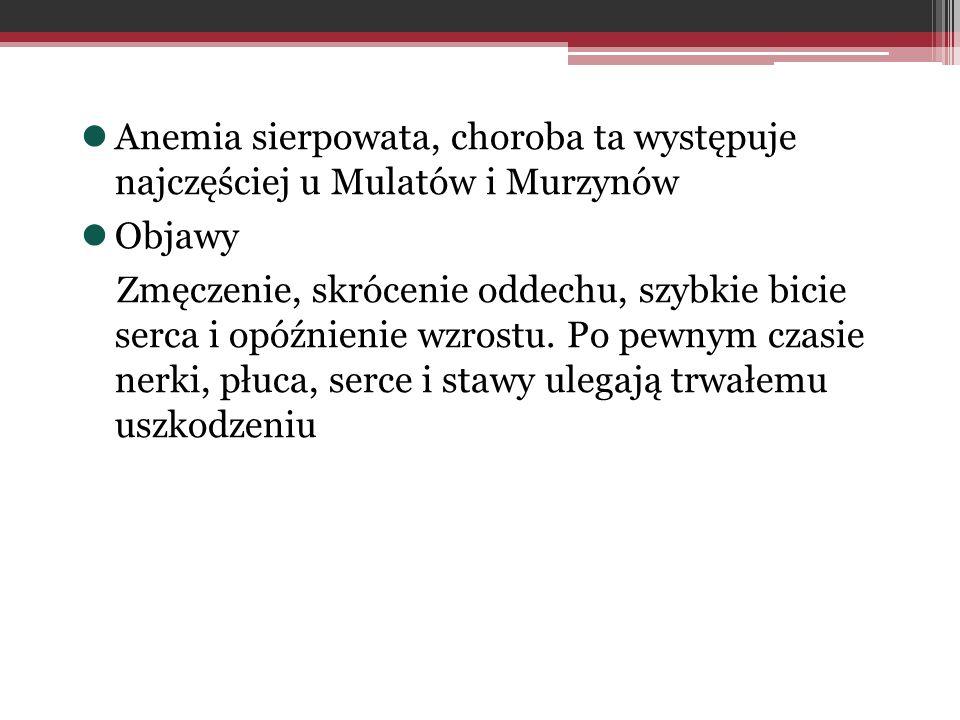 Anemia sierpowata, choroba ta występuje najczęściej u Mulatów i Murzynów