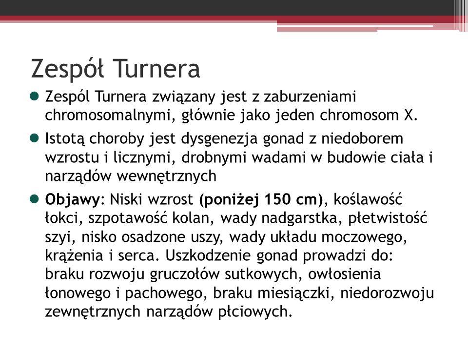 Zespół Turnera Zespól Turnera związany jest z zaburzeniami chromosomalnymi, głównie jako jeden chromosom X.