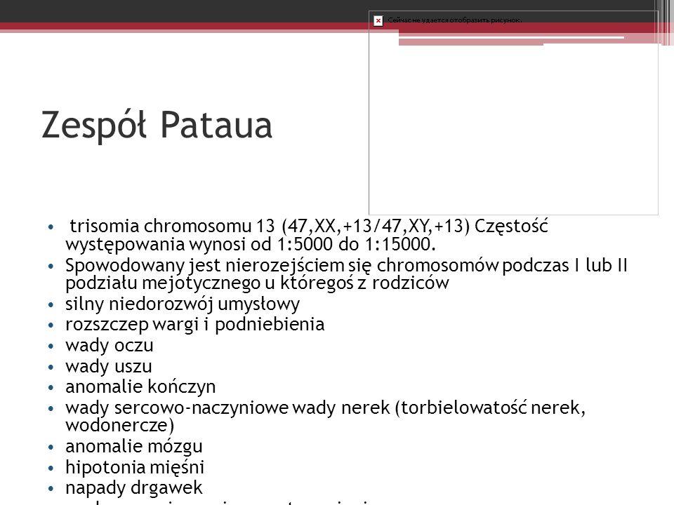 Zespół Pataua trisomia chromosomu 13 (47,XX,+13/47,XY,+13) Częstość występowania wynosi od 1:5000 do 1:15000.