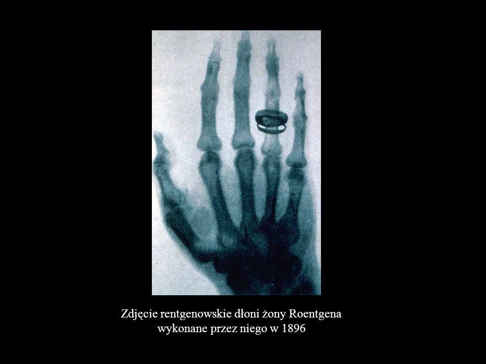 Zdjęcie rentgenowskie dłoni żony Roentgena wykonane przez niego w 1896