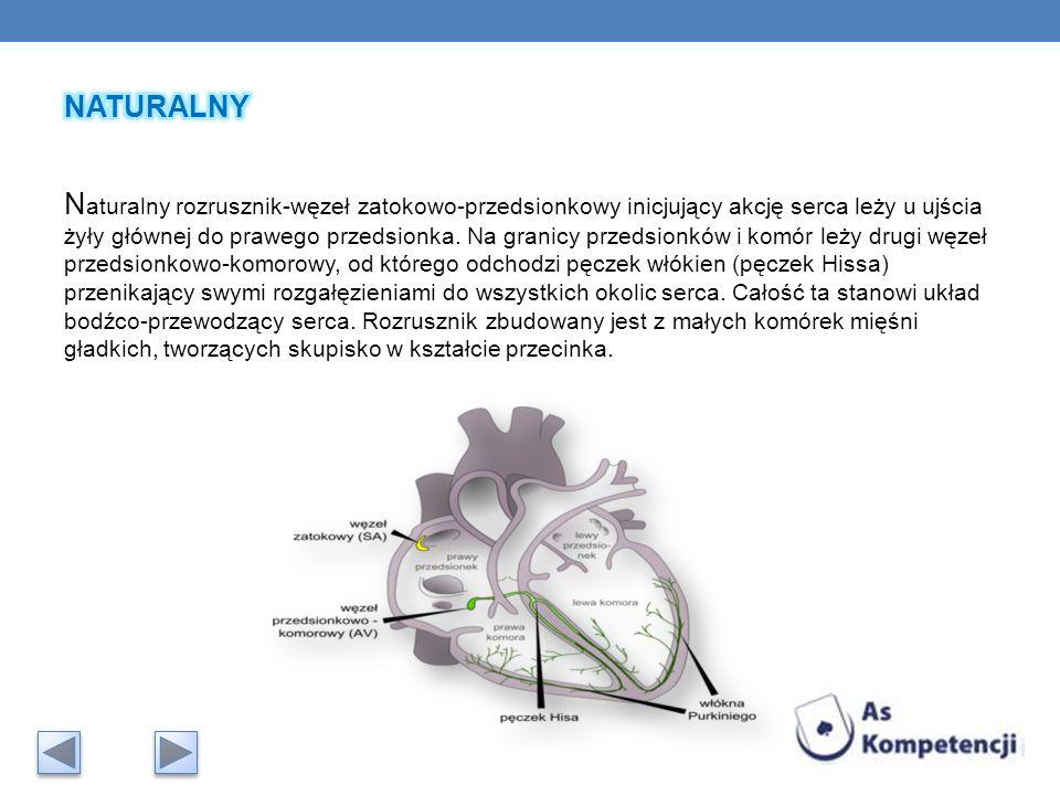 NATURALNY Naturalny rozrusznik-węzeł zatokowo-przedsionkowy inicjujący akcję serca leży u ujścia żyły głównej do prawego przedsionka.