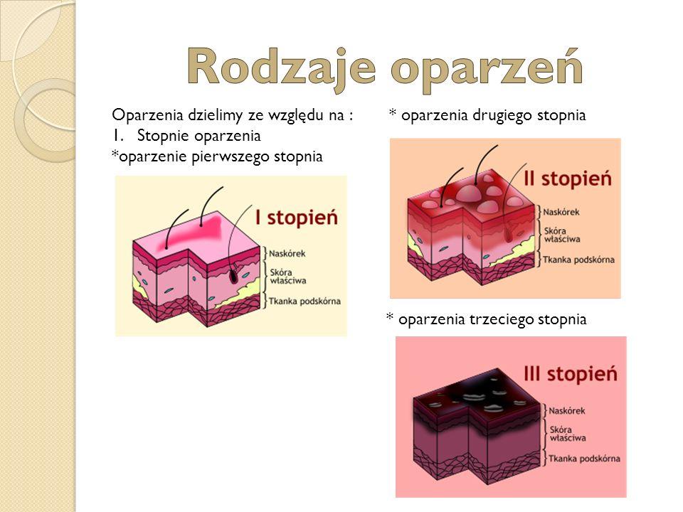 Rodzaje oparzeń Oparzenia dzielimy ze względu na : * oparzenia drugiego stopnia. Stopnie oparzenia.