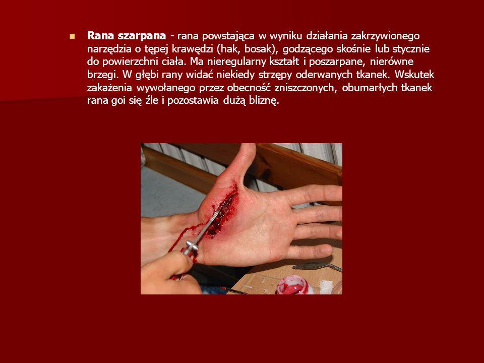 Rana szarpana - rana powstająca w wyniku działania zakrzywionego narzędzia o tępej krawędzi (hak, bosak), godzącego skośnie lub stycznie do powierzchni ciała.