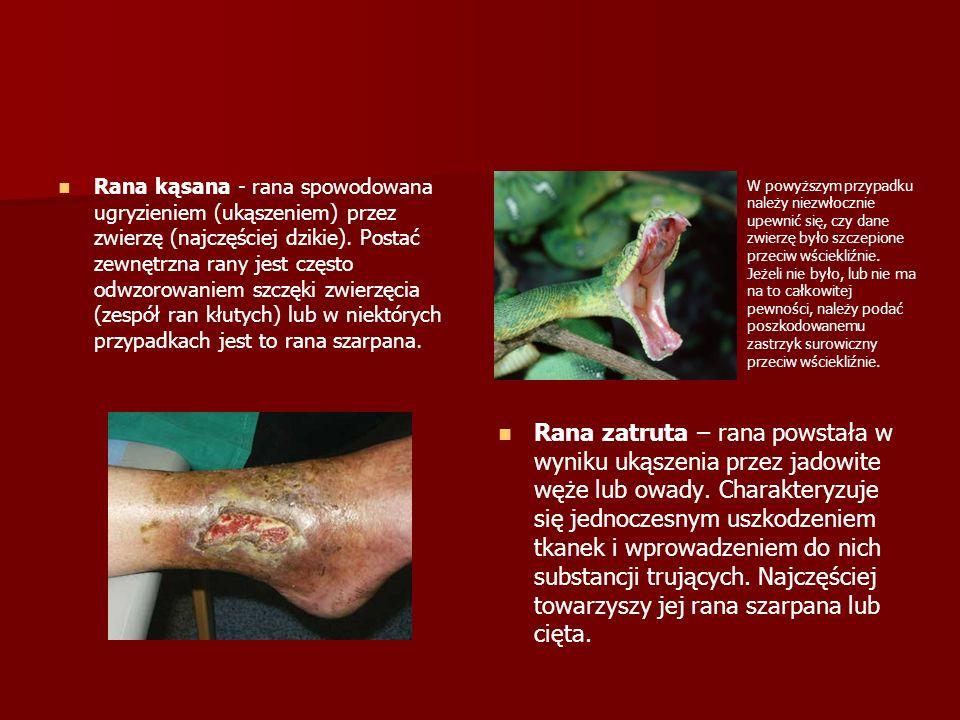 Rana kąsana - rana spowodowana ugryzieniem (ukąszeniem) przez zwierzę (najczęściej dzikie). Postać zewnętrzna rany jest często odwzorowaniem szczęki zwierzęcia (zespół ran kłutych) lub w niektórych przypadkach jest to rana szarpana.