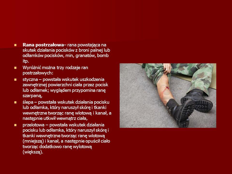 Rana postrzałowa– rana powstająca na skutek działania pocisków z broni palnej lub odłamków pocisków, min, granatów, bomb itp.