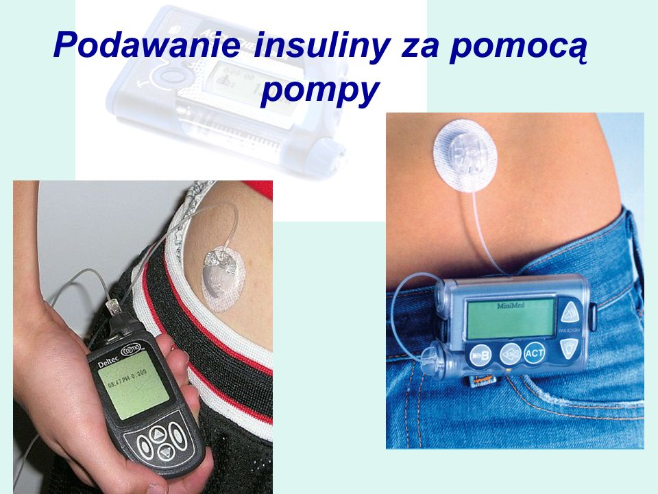 Podawanie insuliny za pomocą pompy