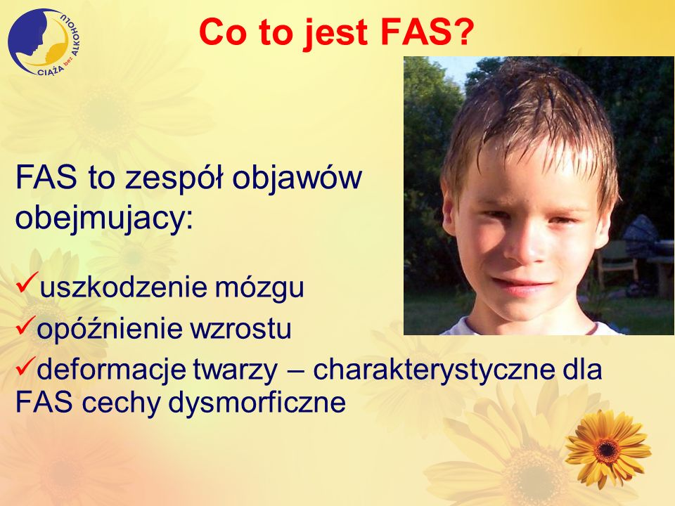 Co to jest FAS FAS to zespół objawów obejmujacy: uszkodzenie mózgu