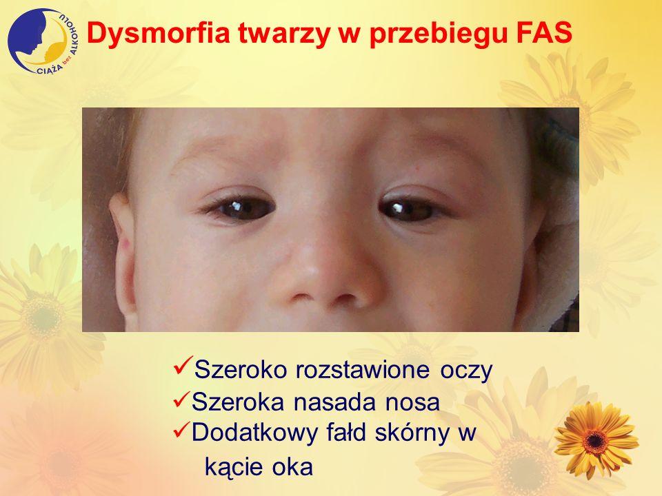Dysmorfia twarzy w przebiegu FAS