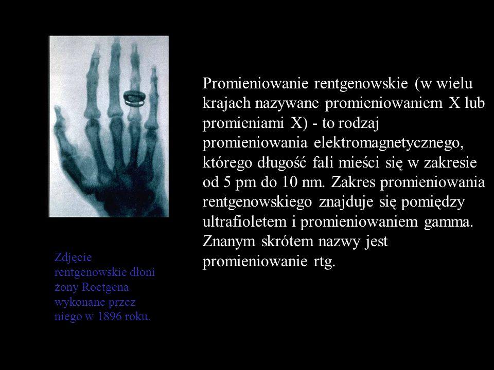 Promieniowanie rentgenowskie (w wielu krajach nazywane promieniowaniem X lub promieniami X) - to rodzaj promieniowania elektromagnetycznego, którego długość fali mieści się w zakresie od 5 pm do 10 nm. Zakres promieniowania rentgenowskiego znajduje się pomiędzy ultrafioletem i promieniowaniem gamma. Znanym skrótem nazwy jest promieniowanie rtg.