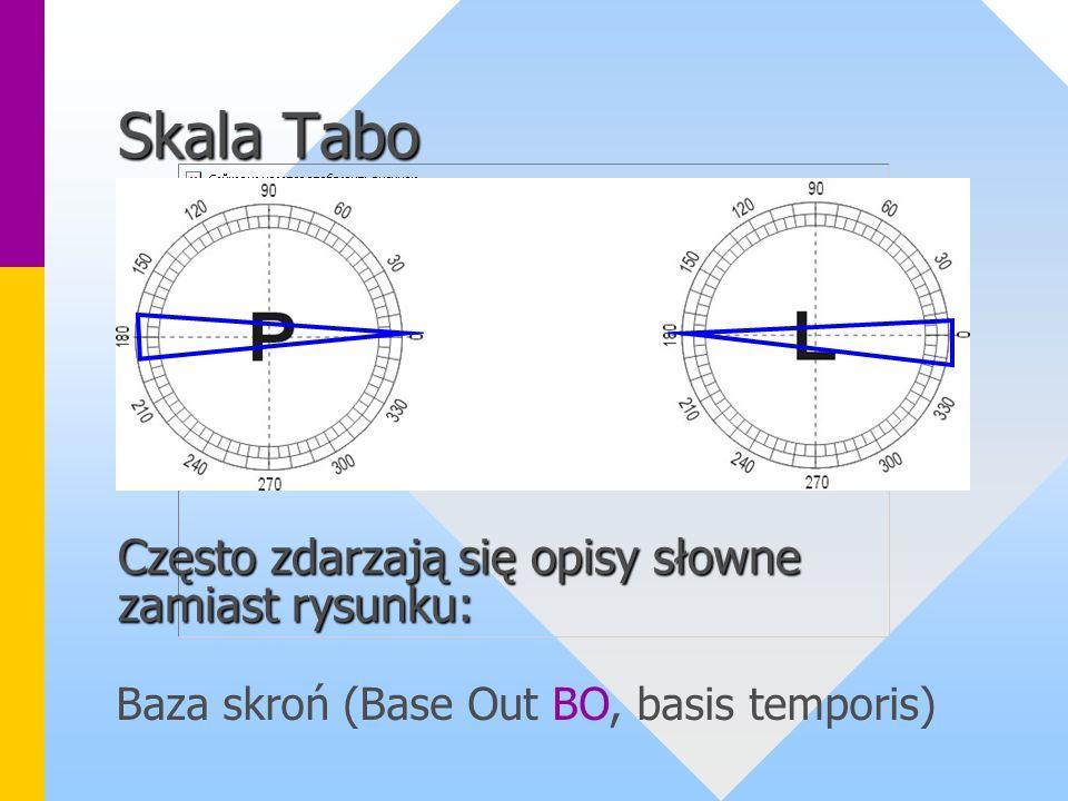 Skala Tabo Często zdarzają się opisy słowne zamiast rysunku: