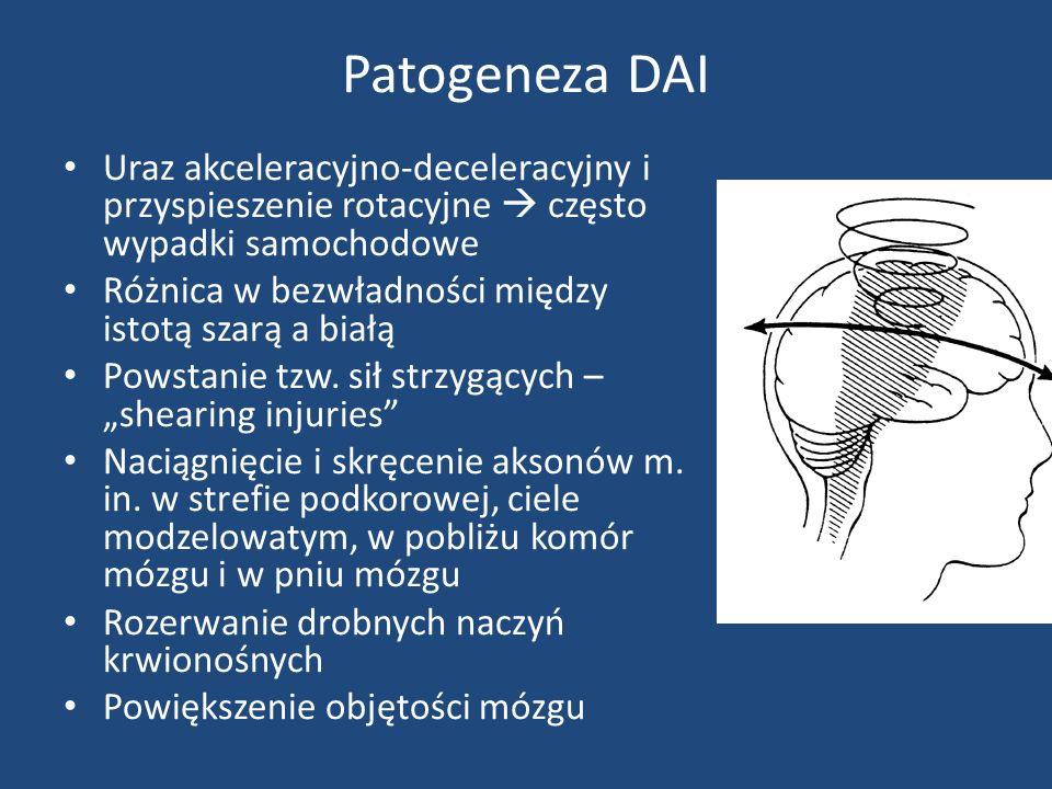 Patogeneza DAI Uraz akceleracyjno-deceleracyjny i przyspieszenie rotacyjne  często wypadki samochodowe.