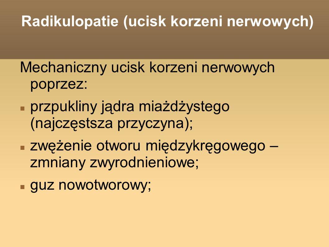 Radikulopatie (ucisk korzeni nerwowych)