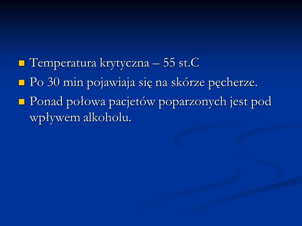 Temperatura krytyczna – 55 st.C