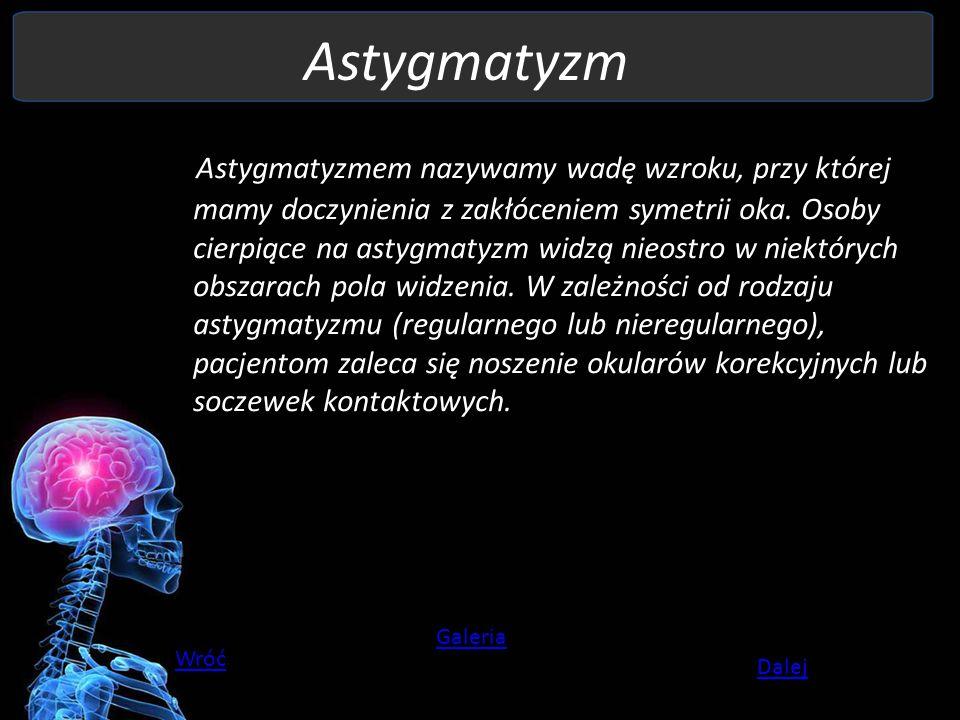 Astygmatyzm