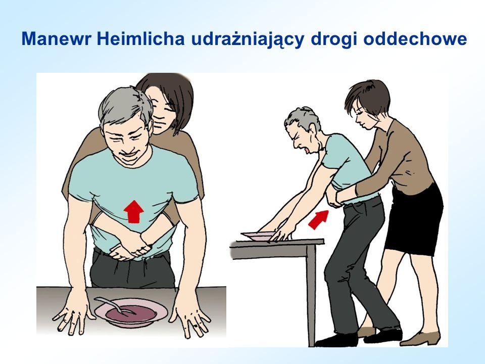 Manewr Heimlicha udrażniający drogi oddechowe