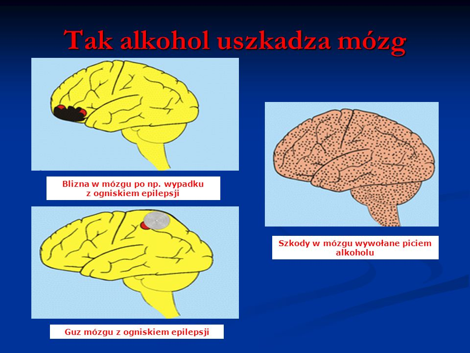 Tak alkohol uszkadza mózg