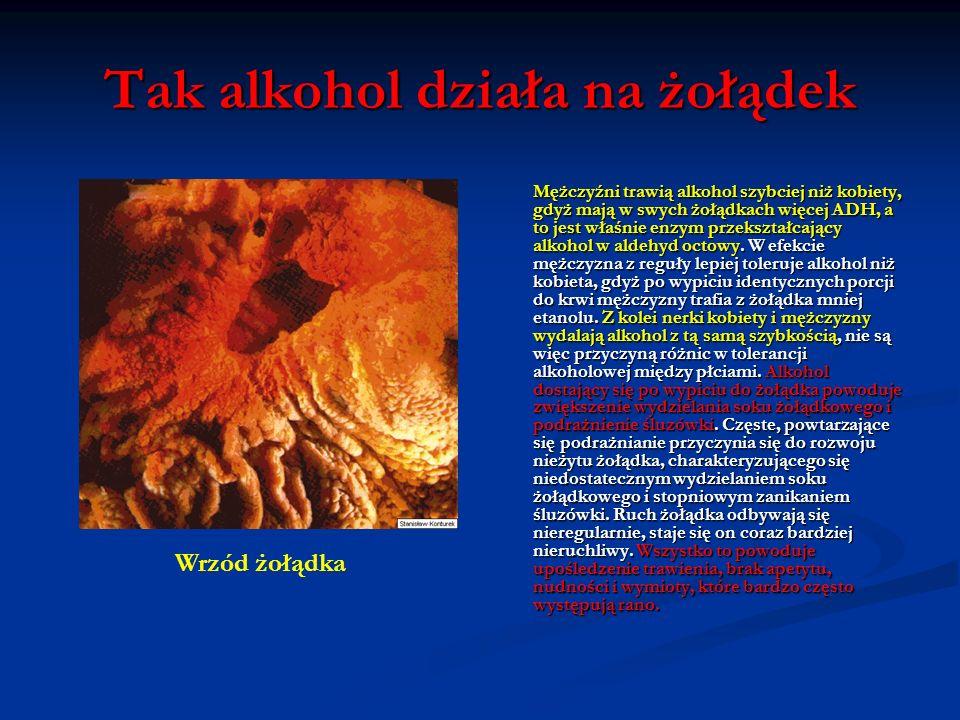 Tak alkohol działa na żołądek